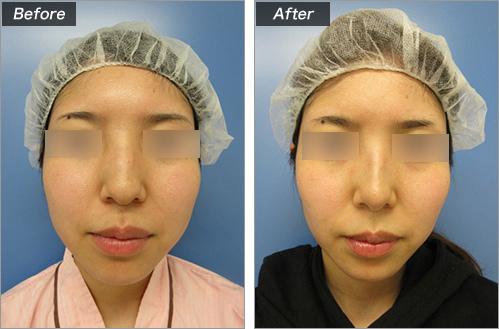 鼻骨切削+骨切块宽度+耳介软骨移植+鼻尖形成的病例照片