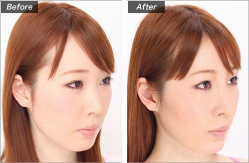 隆鼻術(ヒアルロン酸注入) の症例写真