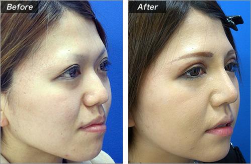 隆鼻术+鼻尖缩小术的病例照片