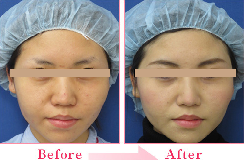 隆鼻术+鼻中隔延长+耳介软骨移植的病例照片