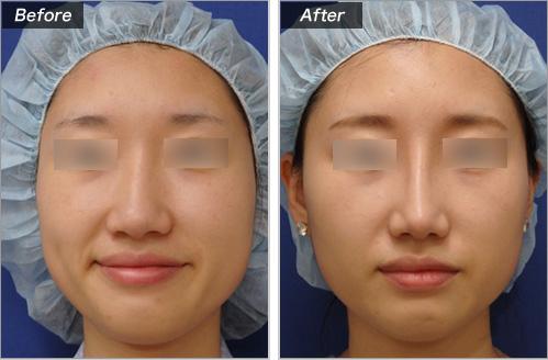 隆鼻術+鼻尖拳上形成術 の症例写真