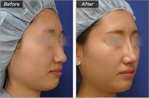 隆鼻术+鼻尖形成术的病例照片