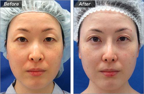 隆鼻術+鼻尖縮小+鼻孔縁下降+耳介軟骨移植+二重切開+眼瞼下垂 の症例写真
