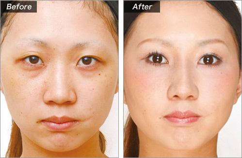 隆鼻术+耳介软骨移植的病例照片