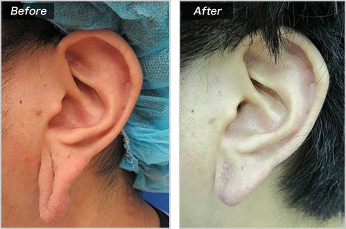 耳たぶ修正術 の症例写真