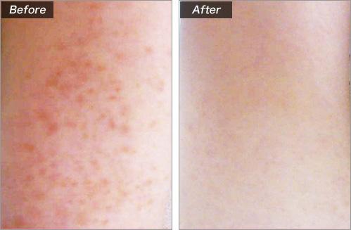 毛孔性苔癬(もうこうせいたいせん) の症例写真