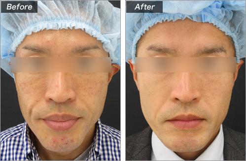 口唇縮小術 の症例写真