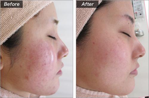 粉刺·粉刺痕迹的病例照片