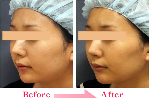 BNLS小顔注射 の症例写真