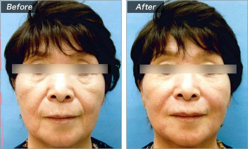 ヒアルロン酸注入(ほうれい線)+ベビーコラーゲン(口上) の症例写真