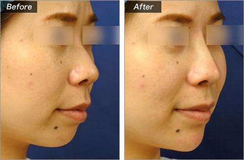 透明质酸注入(鼻子+下巴)病例照片