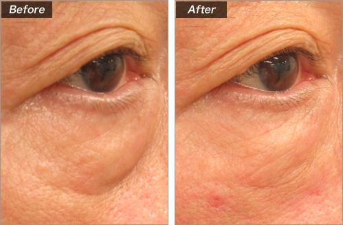 ヒアルロン酸注入(目の下のくぼみ) の症例写真