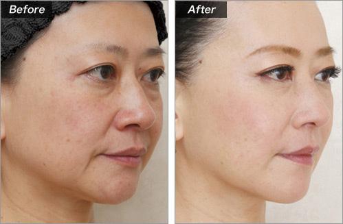 PRP療法(目の下・ほうれい線) の症例写真